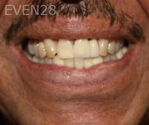 Fenghua-Fu-Smile-Makeover-before-1