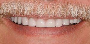 Fred-Harandi-Dental-Crowns-after-1