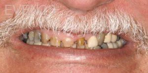 Fred-Harandi-Dental-Crowns-before-1