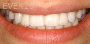Fred-Harandi-Dental-Implants-after-1
