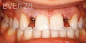Fred-Harandi-Dental-Implants-before-1