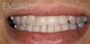 Fred-Harandi-Full-Mouth-Rehabilitation-after-2