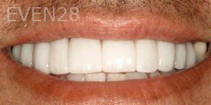 Fred-Harandi-Full-Mouth-Rehabilitation-after-3