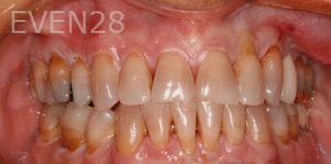 Fred-Harandi-Full-Mouth-Rehabilitation-before-1