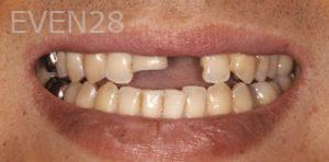 Fred-Harandi-Full-Mouth-Rehabilitation-before-2