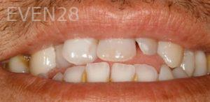 Fred-Harandi-Full-Mouth-Rehabilitation-before-3