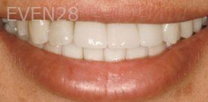 Fred-Harandi-Invisalign-Clear-Aligners-after-1