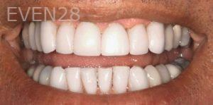 Fred-Harandi-Invisalign-Clear-Aligners-after-2