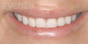 Fred-Harandi-Laser-Gum-Surgery-after-1