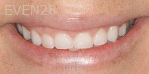 Fred-Harandi-Laser-Gum-Surgery-before-1