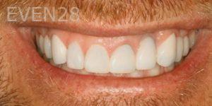 Fred-Harandi-Smile-Makeover-after-1