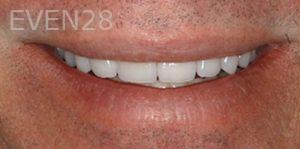 Fred-Harandi-Smile-Makeover-after-3