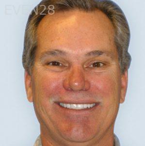 Fred-Harandi-Smile-Makeover-after-3b