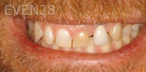 Fred-Harandi-Smile-Makeover-before-1