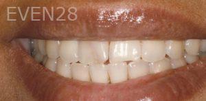 Fred-Harandi-Smile-Makeover-before-2