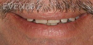 Fred-Harandi-Smile-Makeover-before-3