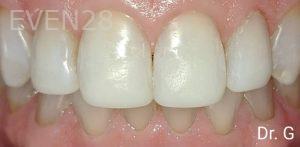 George-Bovili-Dental-Bonding-after-1