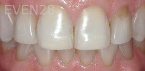 George-Bovili-Dental-Bonding-before-1