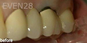 George-Bovili-Dental-Bridge-before-1