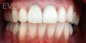 George-Bovili-Dental-Crowns-after-1