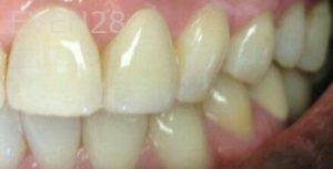 George-Bovili-Dental-Crowns-after-2