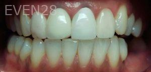 George-Bovili-Dental-Crowns-before-1