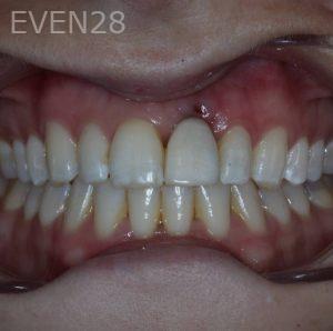 George-Bovili-Dental-Implants-after-1