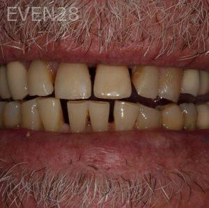 George-Bovili-Dental-Implants-after-2