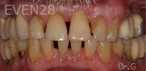 George-Bovili-Dental-Implants-after-2b