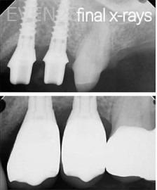 George-Bovili-Dental-Implants-after-3