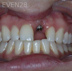 George-Bovili-Dental-Implants-before-1