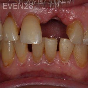 George-Bovili-Dental-Implants-before-2