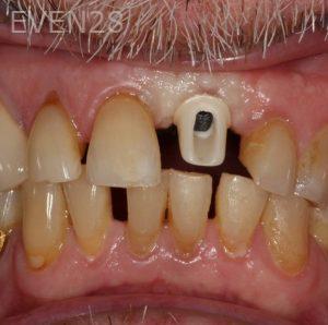 George-Bovili-Dental-Implants-before-2b