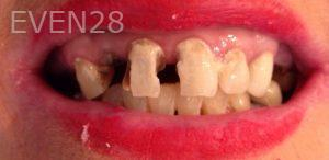 George-Bovili-Full-Mouth-Reconstruction-before-1