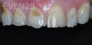 George-Bovili-Porcelain-Veneers-before-2b