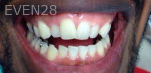 George-Bovili-Teeth-Whitening-after-1