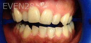 George-Bovili-Teeth-Whitening-before-1