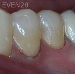 George-Bovili-White-Fillings-after-1