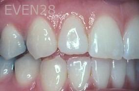 George-Tashiro-Dental-Bonding-after-1