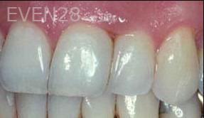 George-Tashiro-Dental-Bonding-after-2
