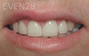 George-Tashiro-Dental-Bonding-after-3