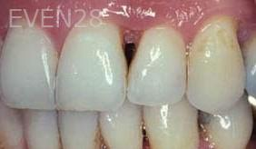 George-Tashiro-Dental-Bonding-before-2
