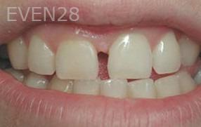 George-Tashiro-Dental-Bonding-before-3