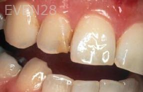 George-Tashiro-Dental-Bonding-before-4