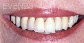 George-Tashiro-Dental-Crowns-after-1