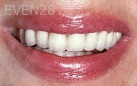 George-Tashiro-Dental-Crowns-after-2