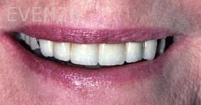 George-Tashiro-Dental-Crowns-after-3