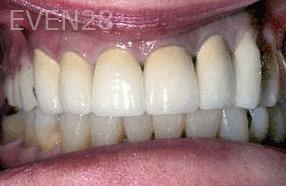 George-Tashiro-Dental-Crowns-after-3b