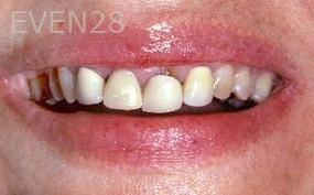 George-Tashiro-Dental-Crowns-before-2