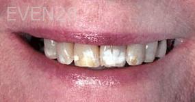 George-Tashiro-Dental-Crowns-before-3